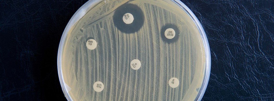 The superbug MRSA has become resistant to common antibiotics © PA Images